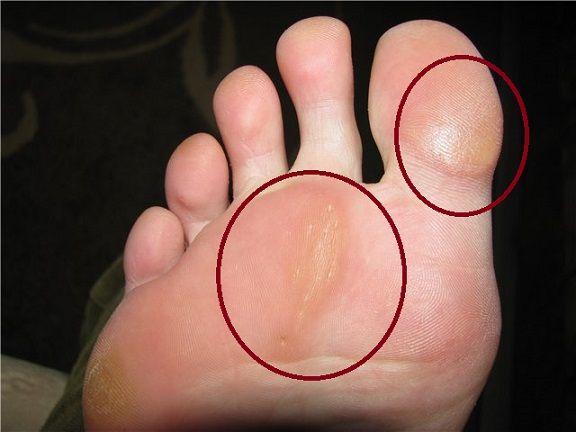 ороговевшей коже на ступнях