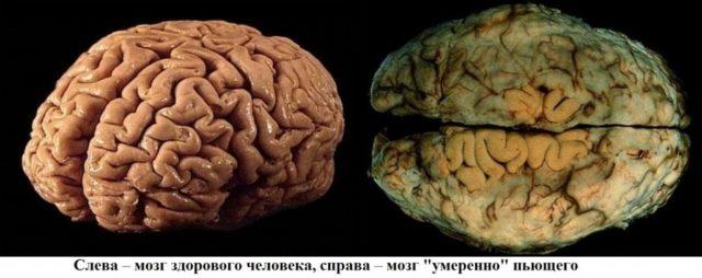 Мозг алкоголика и здорового человека